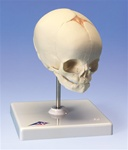 Fetal Skull on stand, 30th week of pregnancy
