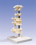 6 Mounted Vertebrae, atlas, axis, another cervical vertebra, two thoracic vertebrae with inter-vertebral discs and one lumbar vertebra