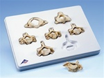 Set of 7 BONElike� Cervical Vertebrae
