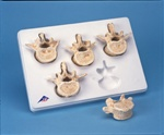 Set of 5 BONElike� Lumbar Vertebrae