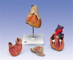 Classic Heart Anatomy with Thymus, 3 part model