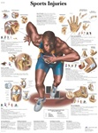 Sports Injuries - Anatomical Chart