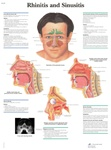 Rhinitis and Sinusitis - Anatomical Chart