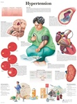 STICKYchart Hypertension Anatomical Sticky Chart