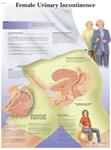 Female Urinary Incontinence - Anatomical Chart