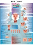 Birth Control - Anatomical Chart