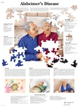 Alzheimer's Disease - Anatomical Chart