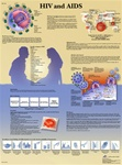 HIV and AIDS - Anatomical Chart