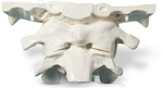Oversized Occiput/Atlas/Axis Cervical Vertebrae Spine Model (Made in USA)