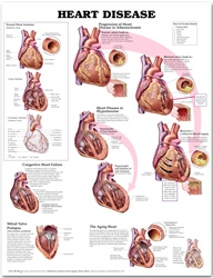 Heart Disease Anatomical Chart, 1st Edition - Paper