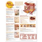 Understanding Skin Cancer Anatomical Chart - Laminated