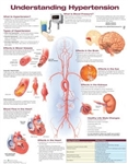Understanding Hypertension Anatomical Chart