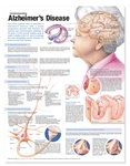 Understanding Alzheimer's Disease Anatomical Chart, Second Edition