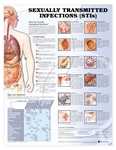 Sexually Transmitted Infections (STIs) Anatomical Chart