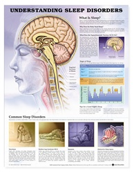 Understanding Sleep Disorders Anatomical Chart