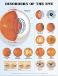 Disorders of the Eye Anatomical Chart, 2nd Edition