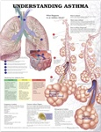 Understanding Asthma Anatomical Chart - Laminated