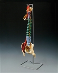 Muscle Spine Model with Disorders