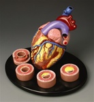 Heart Conditions Model