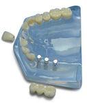 Upper Arch--Central & 3 unit bridge implant supported