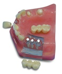 Upper Arch--Central & 3 unit bridge implant supported--3 unit bridge spanning natural abutments