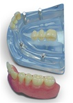 Lower combination implant model--Half overdenture and 3 unit bridge