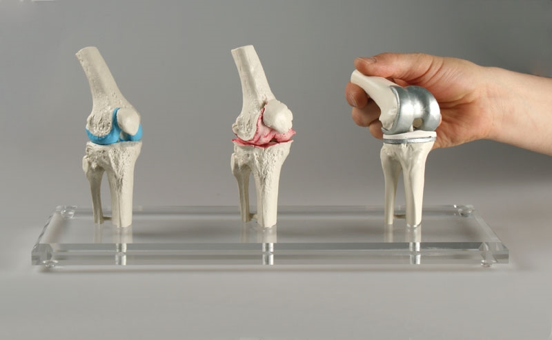 Knee Implant Model Anatomy Models And Anatomical Charts