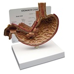 Stomach Cancer Model