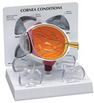 Cornea Eye Model Cross-Section w/ Patient Education Card