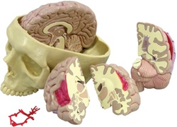 Diseased Brain in Skull Model