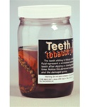 Teeth In Tobacco Juice
