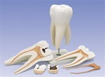 Giant Molar with Dental Caries, 15 times life-size, 6 part