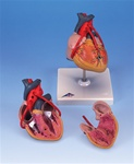 Classic Heart Anatomy with Bypass, 2 part model