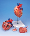 Heart Anatomy with Bypass, 2 times life size, 4 part model