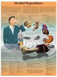 Alcohol Dependence - Anatomical Chart