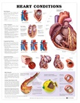 Heart Conditions Anatomical Chart