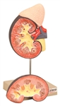 Human Kidney Model, w/ Adrenal Gland - 2 Parts
