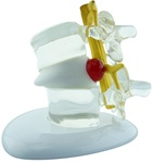NEW Vertebral Simulator - Lumbar Disc Herniation Model